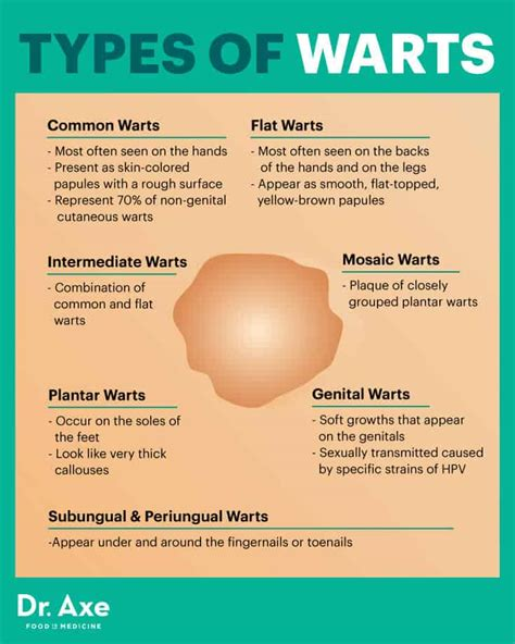 How to Get Rid of Warts Naturally + Wart Symptoms, Causes